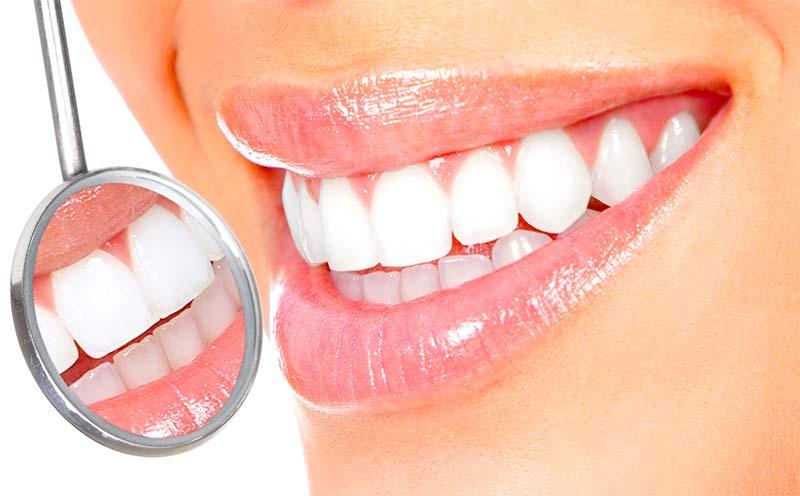La conservación dental ¿para qué el cemento? - TOP aul@ Salud